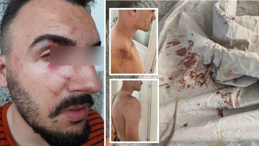 4 جوان پلیس را به خاطر خشونت وحشیانه در گیلان محکوم کردند:
